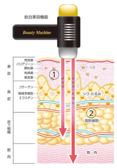 「脂肪」と「筋肉」同時にケア!美容液を電気導入
